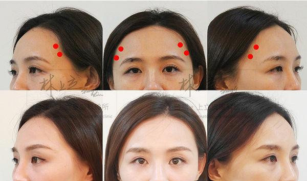 利用ELLANSE治療淚溝的女性案例-1
