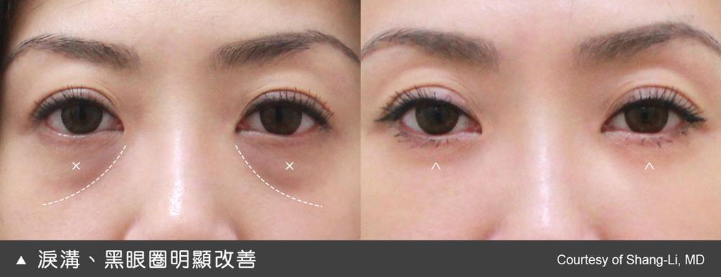 當淚溝改善了,黑眼圈的情況也明顯淡化很多
