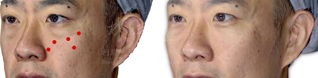 男女性利用ELLANSE洢蓮絲治療淚溝時,注射點位分析