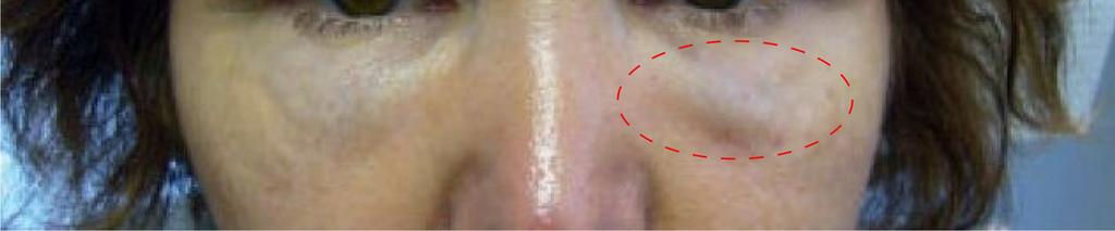 玻尿酸填補太淺,會在眼下產生挺德爾效應Tyndall effect