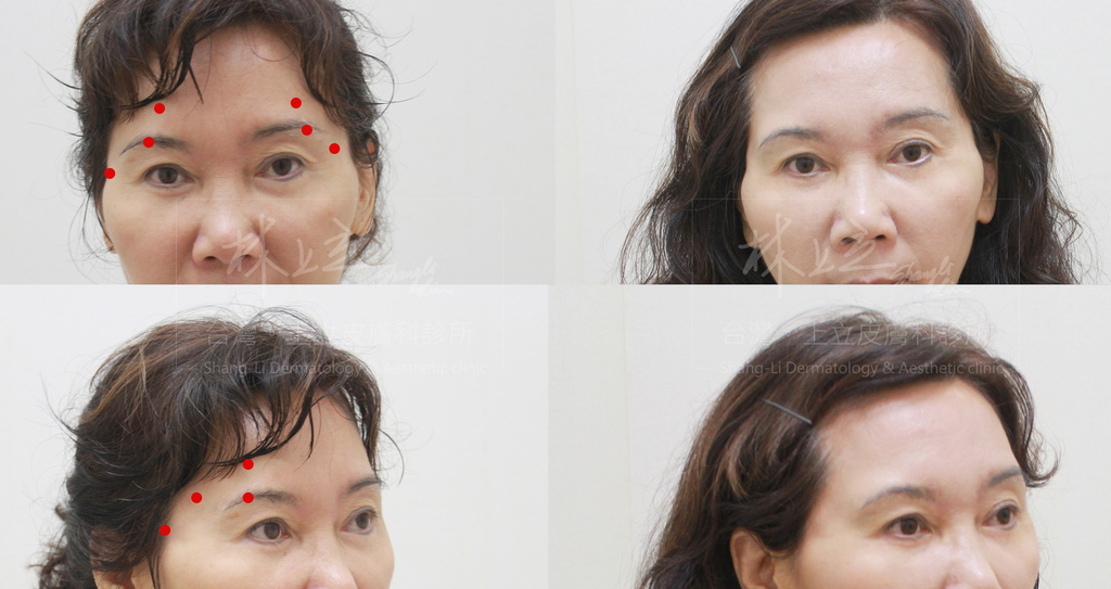 正確注射ELLANSE,可以同步解決淚溝、眼袋、下垂、紋路等