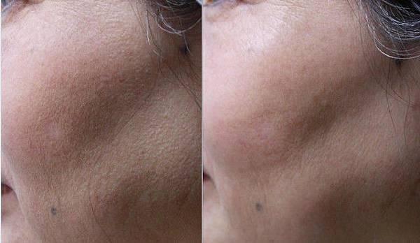 3D聚左旋乳酸治療對毛孔粗大的改善~連細紋都不放過