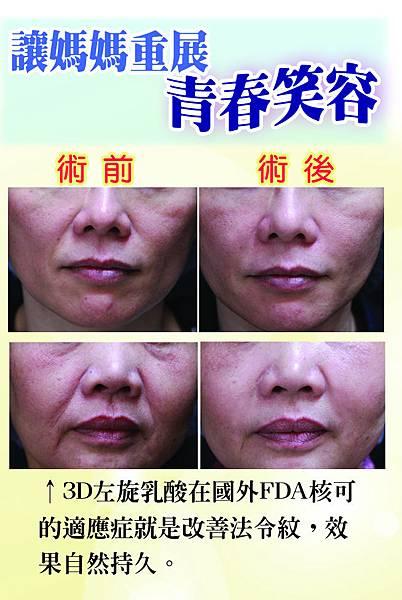 注射3D左旋乳酸,皮膚會自己慢慢長出膠原蛋白,有效治療法令紋