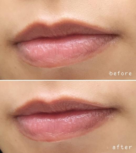 Blistex 護唇膏 潤唇膏 (2)