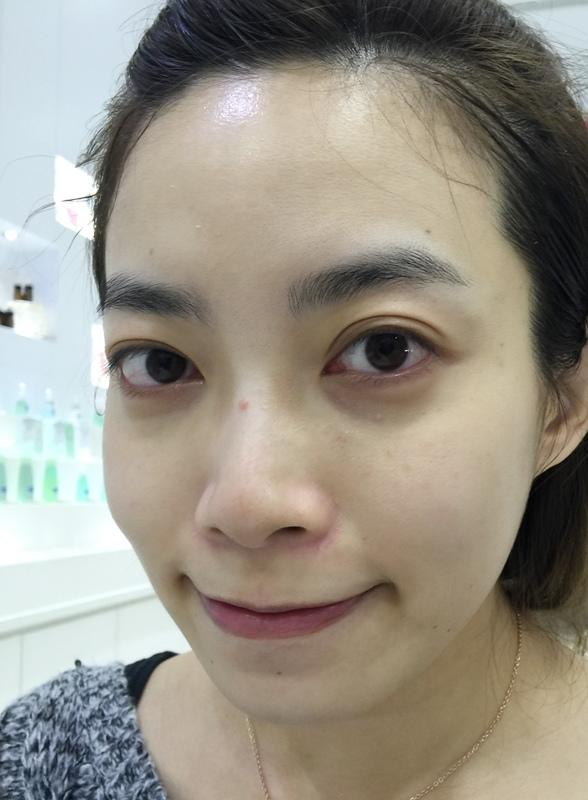 日本樂敦ATORREGE AD+開架保養-敏感肌痘痘肌-深層卸淨凝膠-淨白透亮潔顏慕絲-深層保濕活膚露-高濃度全效滴肌精 (107)