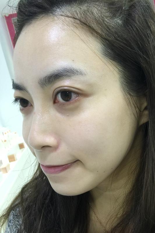 日本樂敦ATORREGE AD+開架保養-敏感肌痘痘肌-深層卸淨凝膠-淨白透亮潔顏慕絲-深層保濕活膚露-高濃度全效滴肌精 (121)