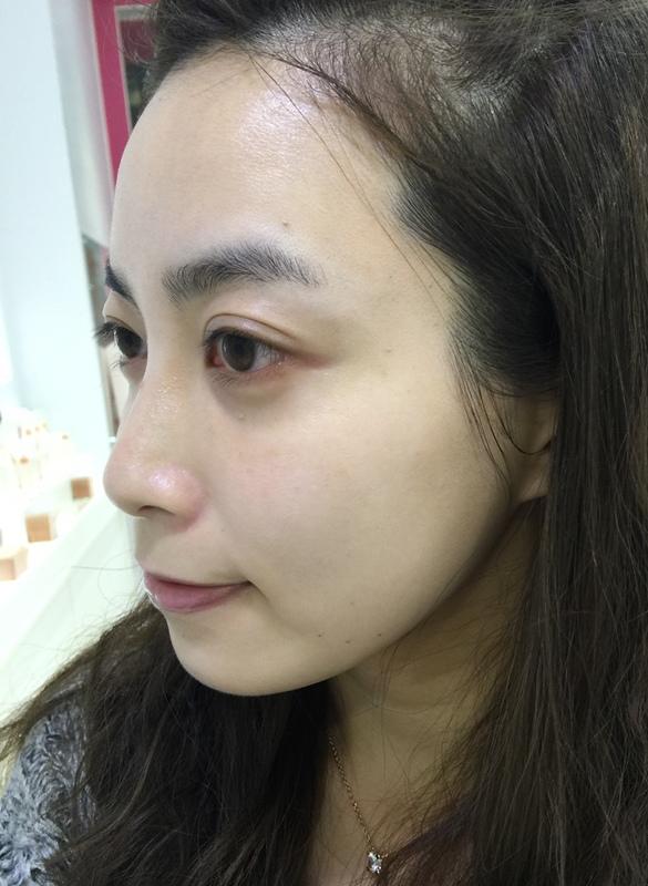 日本樂敦ATORREGE AD+開架保養-敏感肌痘痘肌-深層卸淨凝膠-淨白透亮潔顏慕絲-深層保濕活膚露-高濃度全效滴肌精 (122)