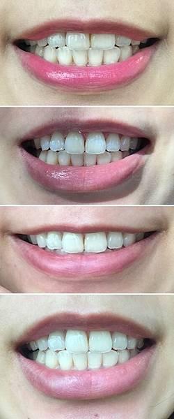 居家牙齒美白-fastwhite齒速白-新娘的婚前保養 (8)-vert