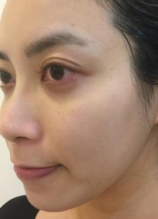 Botanical Force-by Fancl-日本小七7-11專賣獨賣-洗面乳化妝水乳液護手霜卸妝油-7日旅行組-植物溫和無添加-日本東京戰利品藥妝 (1)