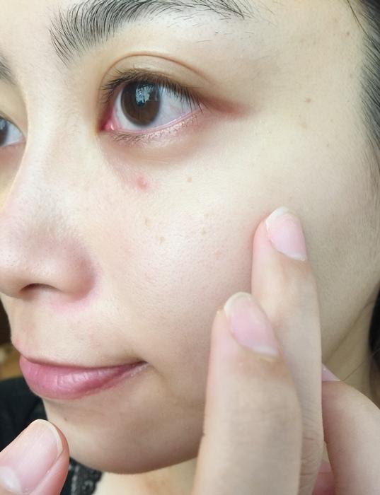 痘痘藥-治痘痘-曼秀雷敦-日本藥妝-ACNE-AD+Atorrage-PAIR日本痘痘藥-成人痘-去粉刺 (26)