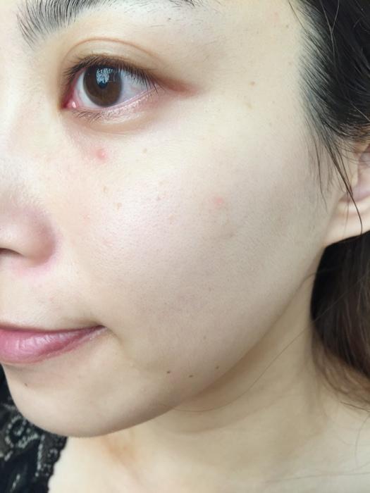 痘痘藥-治痘痘-曼秀雷敦-日本藥妝-ACNE-AD+Atorrage-PAIR日本痘痘藥-成人痘-去粉刺 (29)