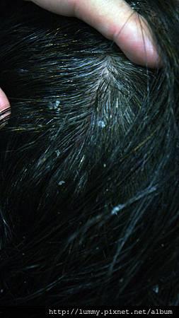 #18 夾在髮絲上的皮屑(1)