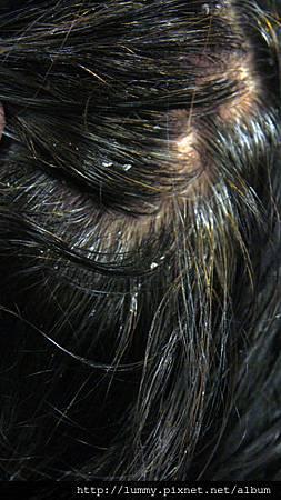 #18 夾在髮絲上的皮屑(2)
