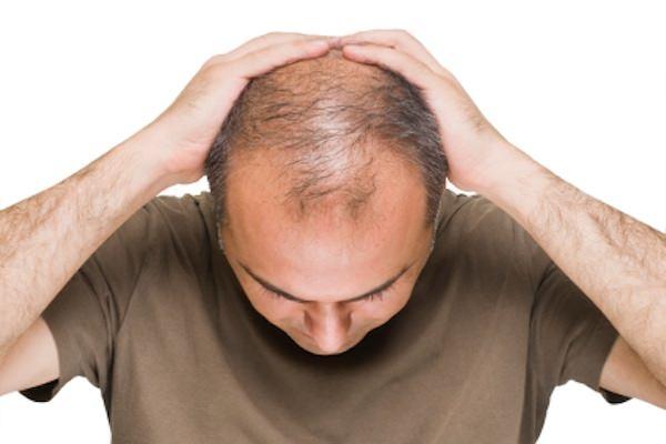 維持好頭皮的健康,防治雄性禿並不難