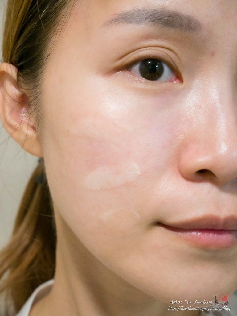 皮膚鬆弛改善.jpg