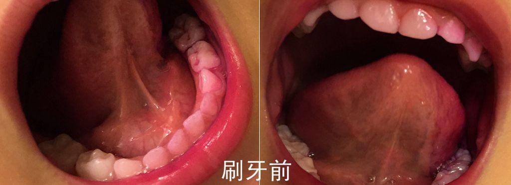 牙菌斑實驗_1
