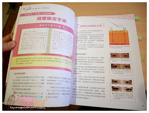 美麗爾縫雙眼皮 (7).JPG