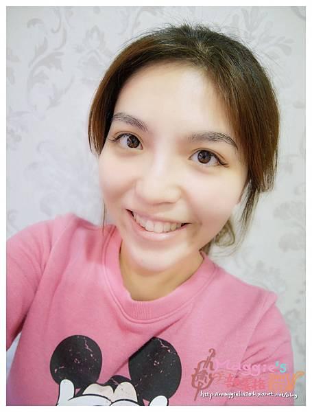 美麗爾縫雙眼皮 (12).JPG