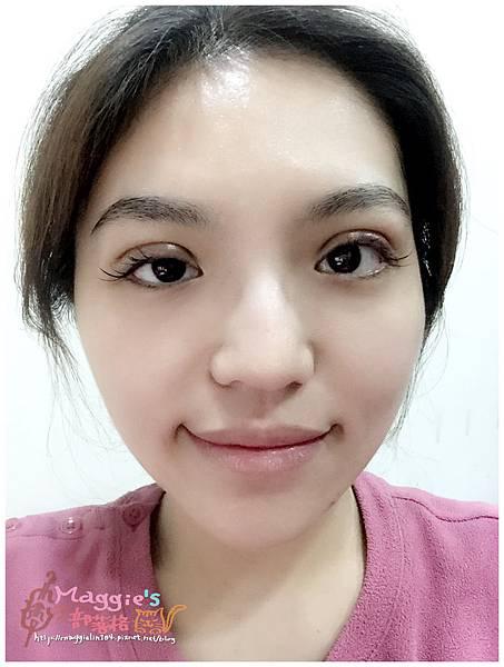 美麗爾縫雙眼皮 (30).jpg