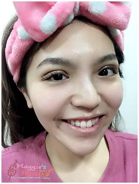 美麗爾縫雙眼皮 (31).jpg