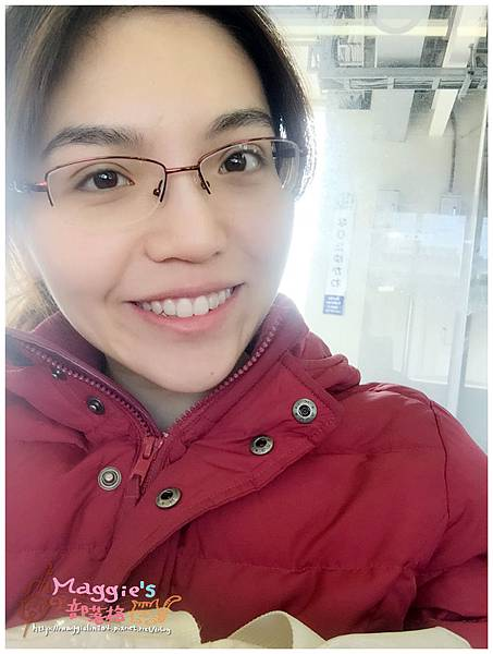 美麗爾縫雙眼皮 (34).JPG