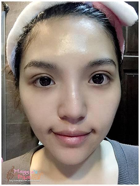 美麗爾縫雙眼皮 (36)