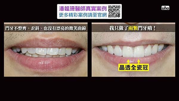 【看好你的牙】第3集-網路潔牙偏方大解密.mp4_20170804_133204.523.jpg