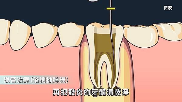 【看好你的牙】第5集-牙齒吃冷吃熱會痛預示著什麼 by魔法牙醫 潘韞珊院長.mp4_20170803_155617.193.jpg