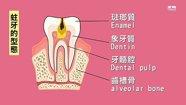 【看好你的牙】第2集-蛀牙、牙周病竟會要你命! by魔法牙醫 潘韞珊院長.mp4_20170804_132522.951.jpg