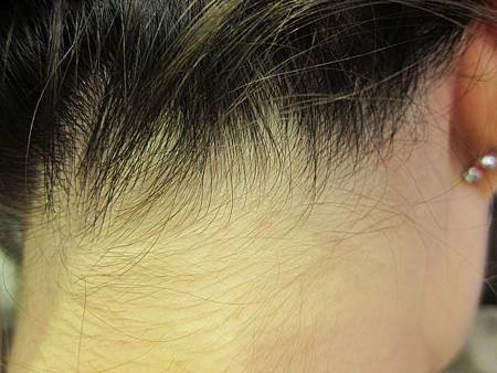 頭頸後脂漏性皮膚炎痊癒