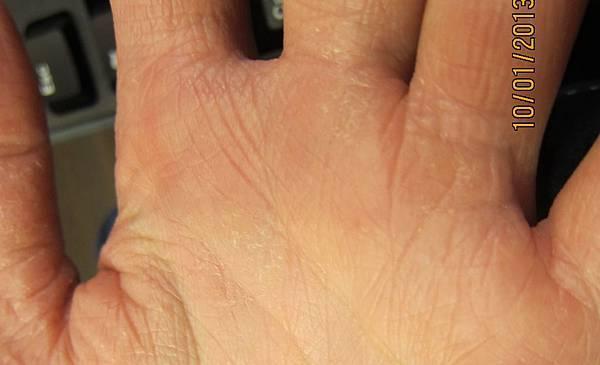 汗皰疹針灸後7