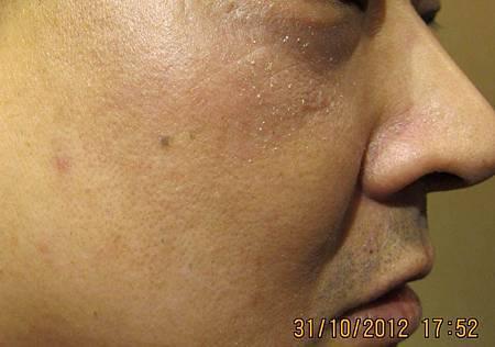 皮膚過敏針灸後