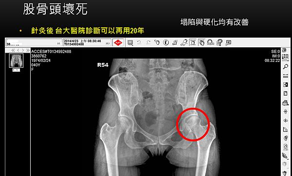 股骨頭壞死針灸後塌陷硬化均有改善1