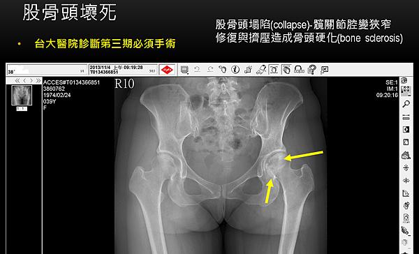股骨頭壞死針灸前1