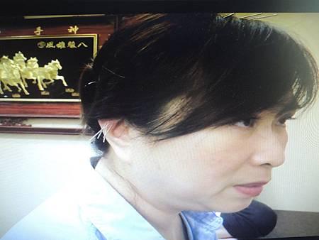 尿道憩室溫崇凱中醫師針灸治難症