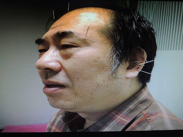 三叉神經痛溫崇凱中醫師針灸