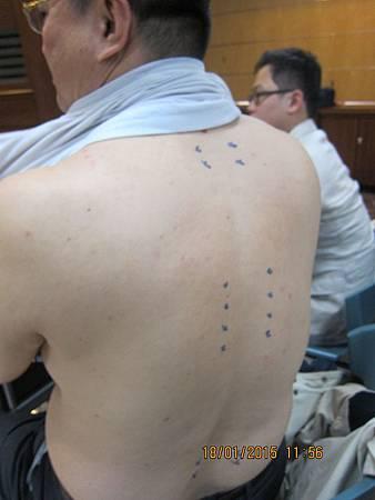 溫崇凱中醫師台南市中醫師公會針灸教學背針1