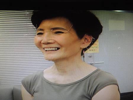 類風溼關節炎溫崇凱中醫師針灸