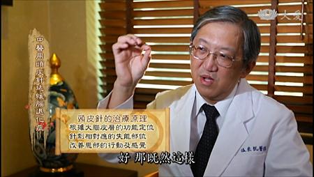 溫崇凱中醫師大愛專訪頭皮針原理