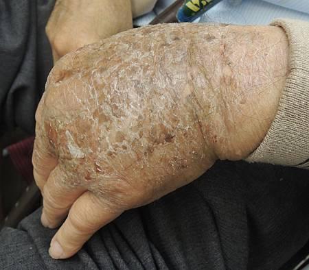 0723皮膚病針灸前 溫崇凱中醫師