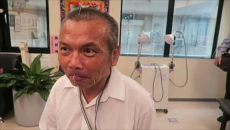 中風流口水針灸溫崇凱中醫師