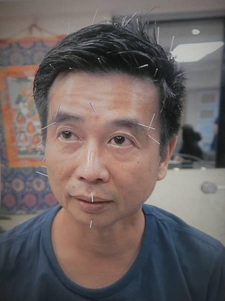 溫崇凱中醫師針灸妥瑞