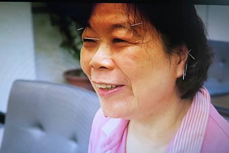 扁平足針灸溫崇凱中醫師
