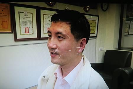 面癱針灸溫崇凱中醫師