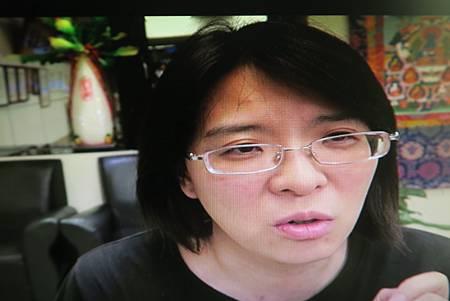複視針灸溫崇凱中醫師