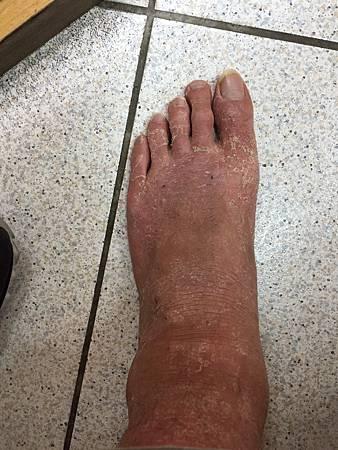皮膚病針灸前溫崇凱中醫師