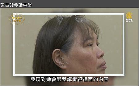 新唐人電視台溫崇凱中醫師針灸治老人失智