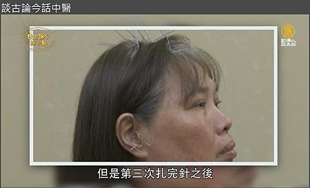 新唐人電視台溫崇凱中醫師針灸治阿茲海默