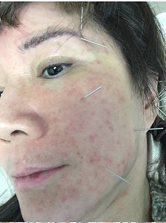 0515-1針灸前(皮膚病)
