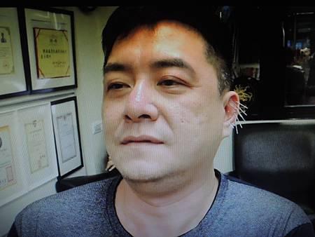小腦萎縮針灸進步溫崇凱中醫師.png.jpg